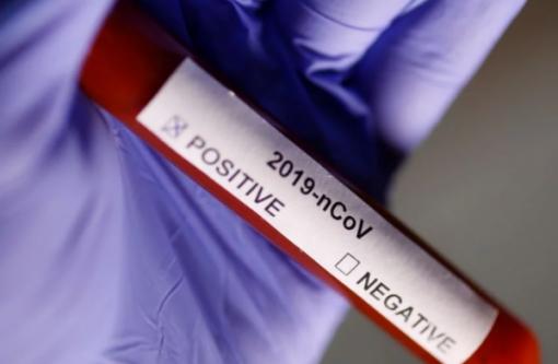 """""""Раптово почав кашляти кров'ю"""": медик назвала, що найстрашніше у смерті від коронавірусу"""