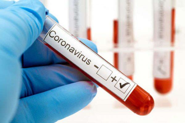 Коронавірус можна знищити за 48 годин: вчені знайшли унікальний спосіб