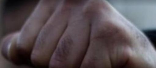 """""""Голова потрощена, блює, страждає від болю"""": 12-річну дівчинку жорстоко побили посеред вулиці на курорті (відео)"""