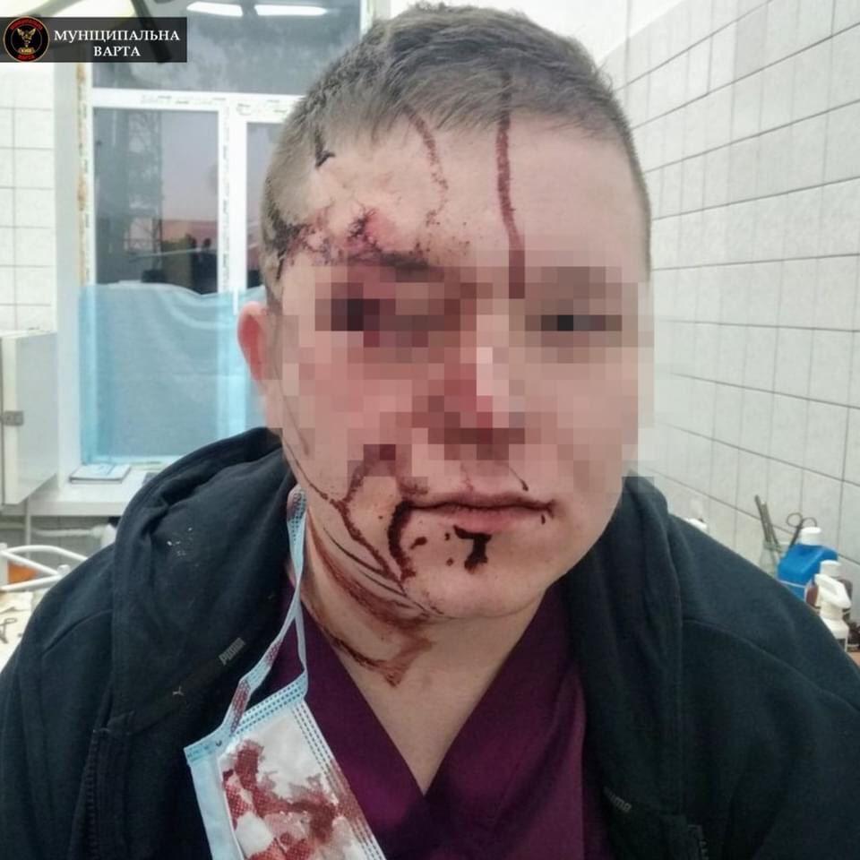 Гамселив стільцем, коли той стікав кров'ю: неадекват по-звірячому побив лікаря просто на прийомі (фото 18+)