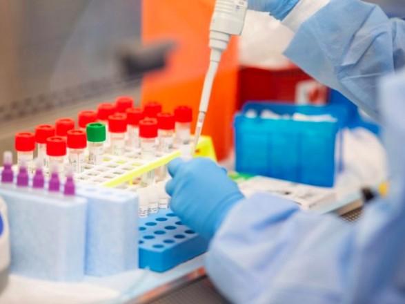 МОЗ повністю оновив алгоритм тестування на наявність коронавірусу
