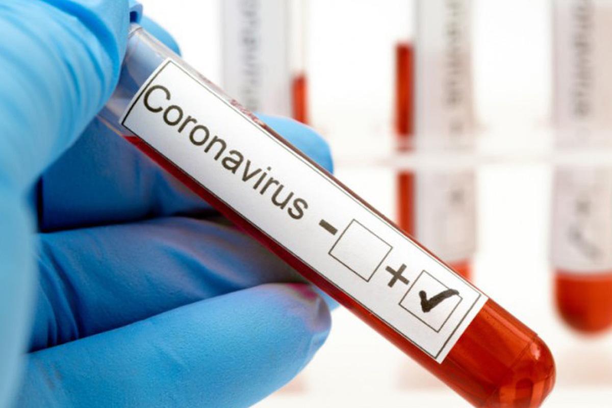 В Україні створено універсальний тест для діагностики одночасно коронавірусу і грипу