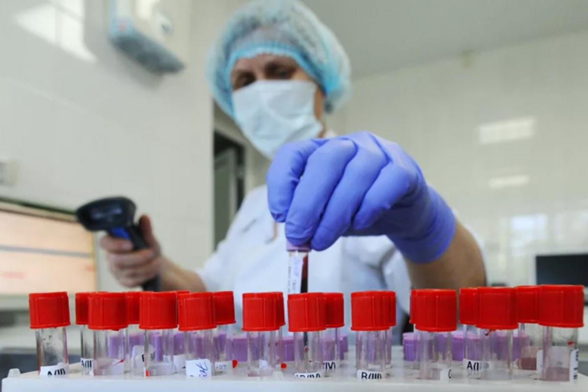 У МОЗ прокоментували можливість тотального тестування на коронавірус