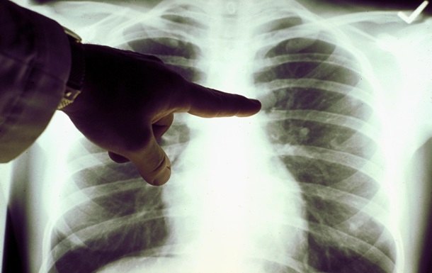 Фахівці розповіли, як відрізнити пневмонію від застуди