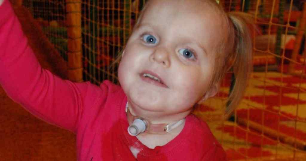 Потрібен порятунок! Трирічна Емілія через вроджену ваду перестає дихати по кілька разів на день